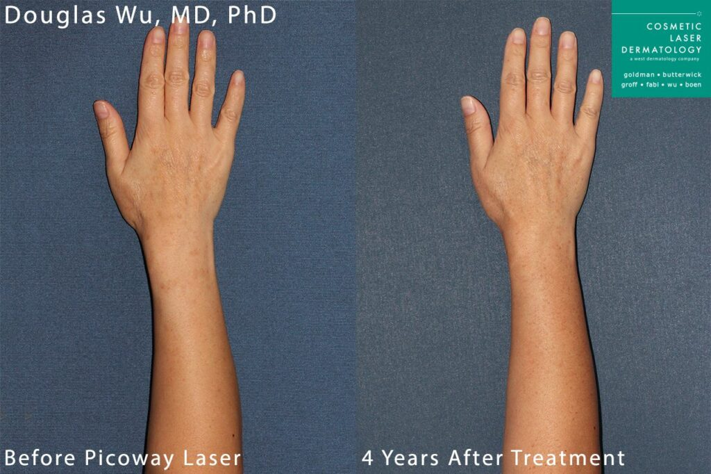 PicoWay laser to treat sun damage on arms and hands by Dr. Wu. Disclaimer: Results may vary from patient to patient. Results are not guaranteed.