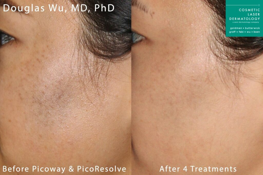 PicoWay laser to treat cheek discoloration by Dr. Wu. Disclaimer: Results may vary from patient to patient. Results are not guaranteed.