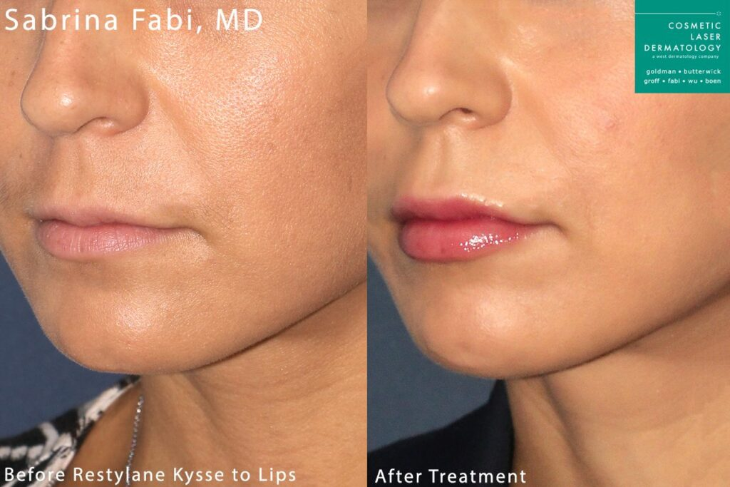 Restylane Kysse for lip augmentation by Dr. Fabi. Disclaimer: Results may vary from patient to patient. Results are not guaranteed.