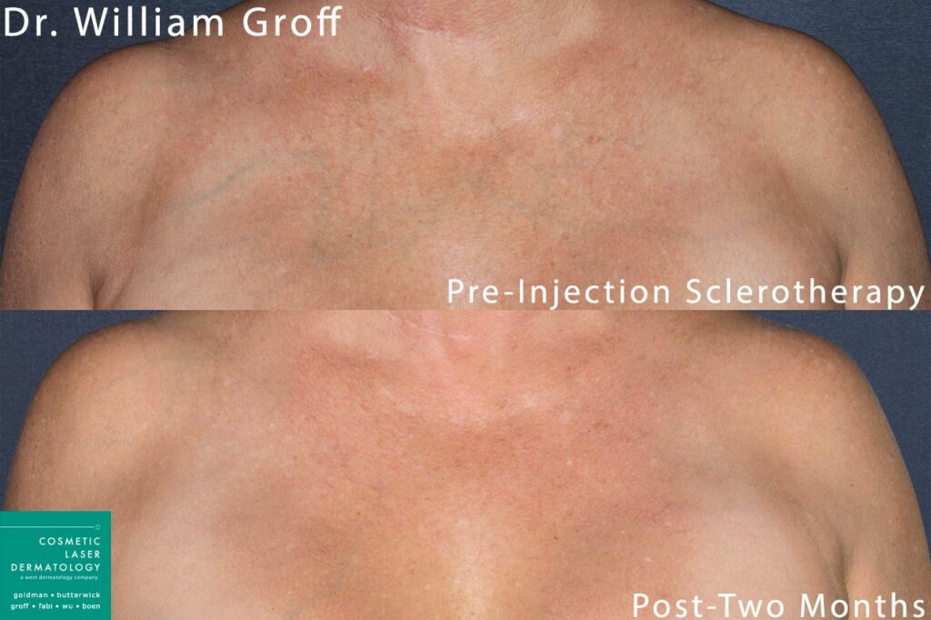 Sclerotherapy to treat visible veins on the chest by Dr. Groff. Disclaimer: Results may vary from patient to patient. Results are not guaranteed.
