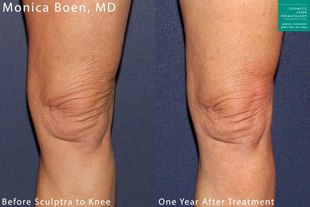 Sculptra to add volume and treat knee wrinkles by Dr. Boen. Disclaimer: Results may vary from patient to patient. Results are not guaranteed.