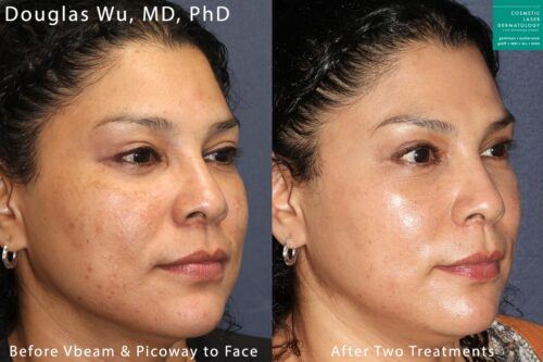 Vbeam and PicoWay lasers used to treat brown spots by Dr. Wu. After two treatments, patient's skin is visibly clearer.