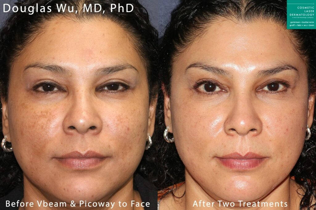 Two sessions with Vbeam and PicoWay laser to treat brown spots by Dr. Wu. Disclaimer: Results may vary from patient to patient. Results are not guaranteed.
