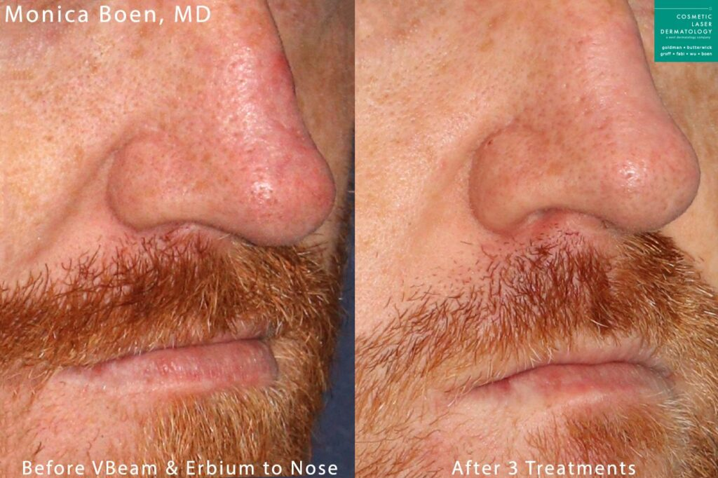 Vbeam and Erbium lasers used to treat nose redness by Dr. Boen. Disclaimer: Results may vary from patient to patient. Results are not guaranteed.