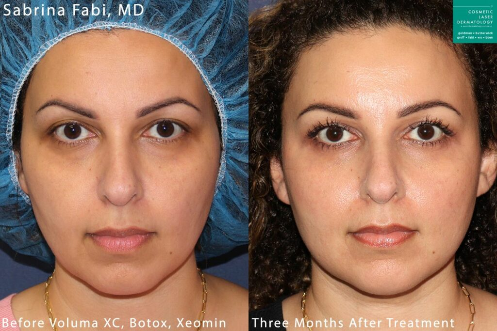 Botox and Voluma for facial rejuvenation and contouring by Dr. Fabi. Disclaimer: Results may vary from patient to patient. Results are not guaranteed.