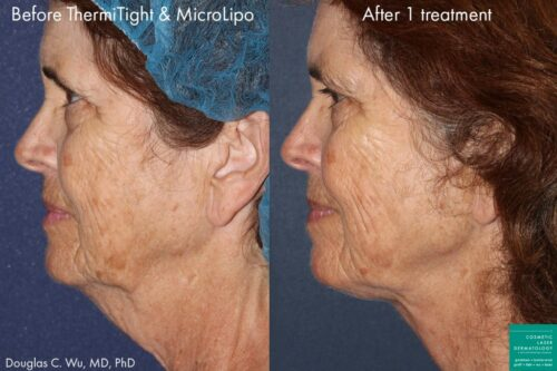 Thermi skin tightening treatment in san diego, ca