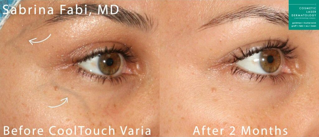 CoolTouch Varia to treat veins around the eye by Dr. Fabi. Disclaimer: Results may vary from patient to patient. Results are not guaranteed.