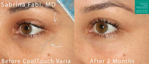 CoolTouch Varia to remove veins from around the eyes by Dr. Fabi. After treatment, visible vein is gone.