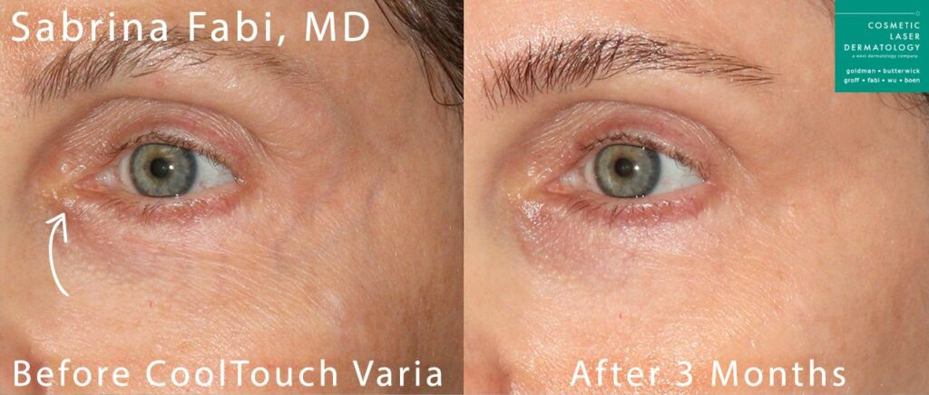 CoolTouch Varia to remove veins around the eye by Dr. Fabi. Disclaimer: Results may vary from patient to patient. Results are not guaranteed.