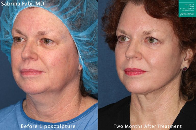 Liposculpture to treat submental fat under the chin by Dr. Fabi. Disclaimer: Results may vary from patient to patient. Results are not guaranteed.