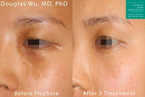 Picosure laser used to remove birthmark from around the eye by Dr. Wu. After 3 treatments, mark is virtually undectable.