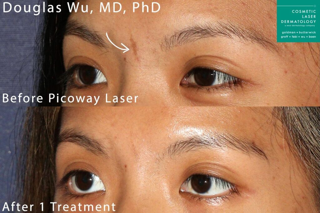 Picoway laser used to remove cafe au lait macule by Dr. Wu. Disclaimer: Results may vary from patient to patient. Results are not guaranteed.