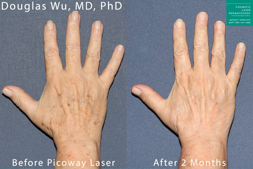 PicoWay laser to remove brown spots from hands by Dr. Wu. Disclaimer: Results may vary from patient to patient. Results are not guaranteed.
