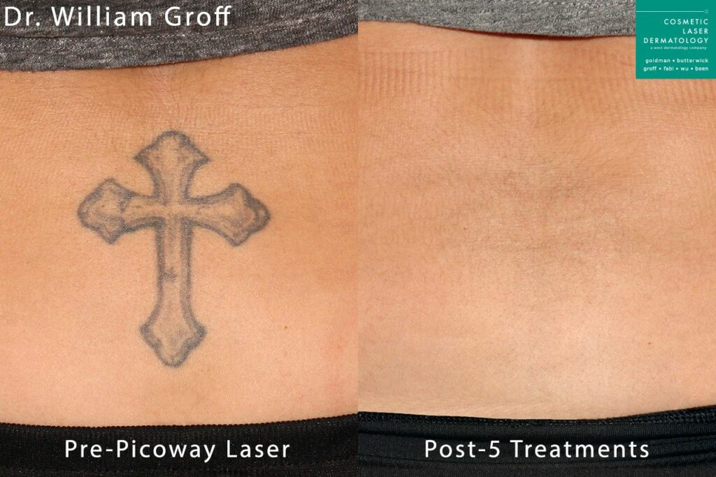 PicoWay laser treatment to remove tattoo by Dr. Groff. Disclaimer: Results may vary from patient to patient. Results are not guaranteed.
