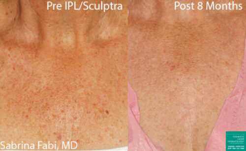 IPL therapy and Sculptra for chest rejuvenation in San Diego, CA