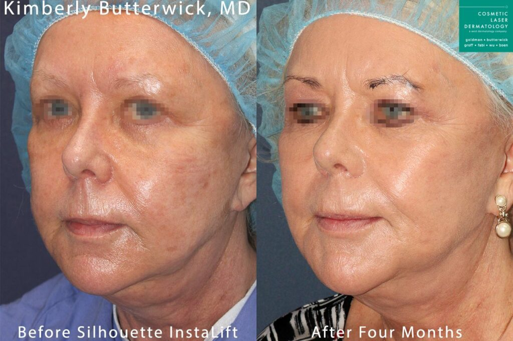 Silhouette InstaLift to rejuvenate the face by Dr. Butterwick. Disclaimer: Results may vary from patient to patient. Results are not guaranteed.
