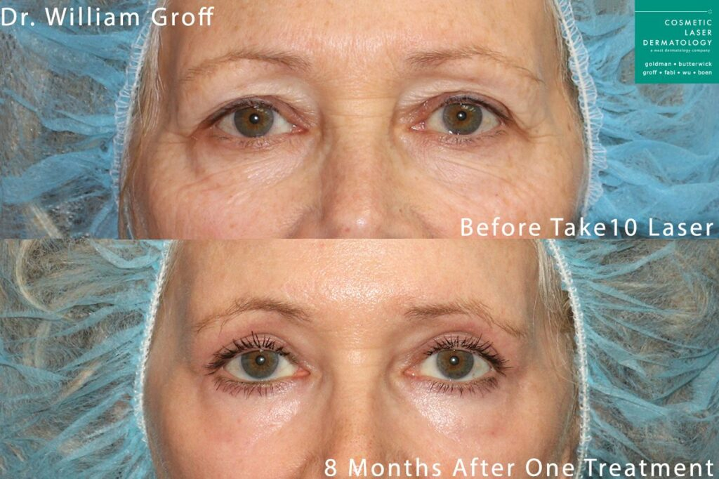 Take 10 laser procedure to reverse aging signs around the eyes by Dr. Groff. Disclaimer: Results may vary from patient to patient. Results are not guaranteed.