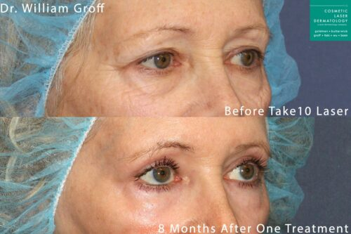 Take 10 treatment with laser resurfacing to rejuvenate the eye area by Dr. Groff. Treatment reduces appearance of lines and creates firmer, smoother skin.