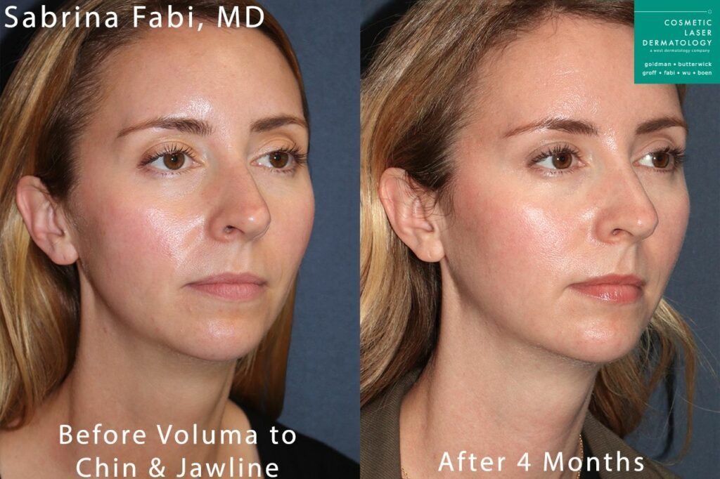 Voluma to sculpt the chin and jawline by Dr. Fabi. Disclaimer: Results may vary from patient to patient. Results are not guaranteed.