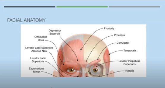facial wrinkle treatment diagram in san diego, ca