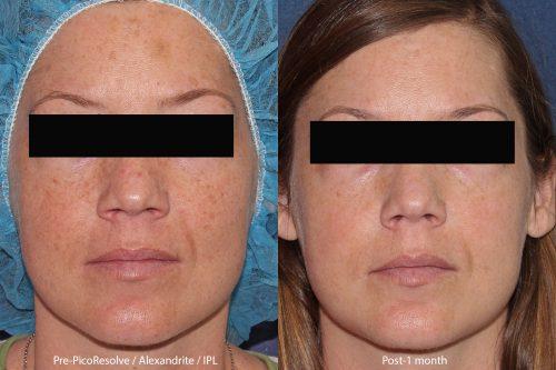 laser skin resurfacing in san diego, ca