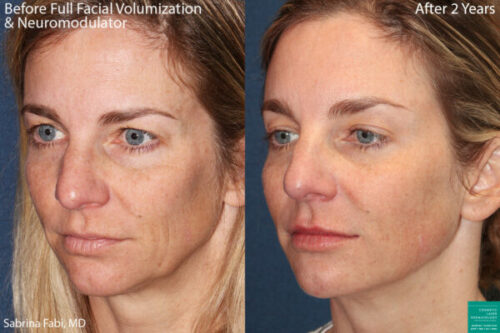 restore lost facial volume with botox in San Diego, CA