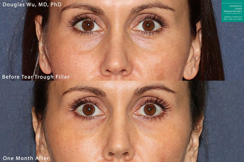 Restylane Refyne to refresh the tear troughs by Dr. Wu. Disclaimer: Results may vary from patient to patient. Results are not guaranteed.