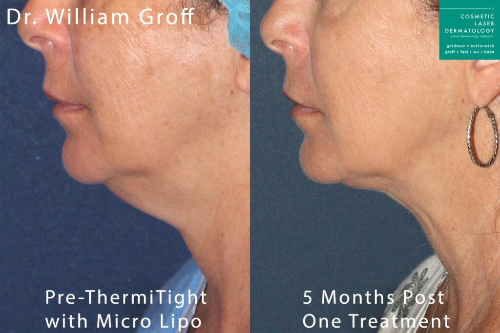 ThermiTight and Microlipo to reduce submental fat under the chin by Dr. Groff. Disclaimer: Results may vary from patient to patient. Results are not guaranteed.