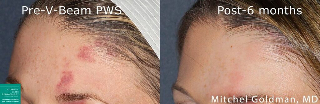 Vbeam laser to remove port wine stain on forehead by Dr. Goldman. Disclaimer: Results may vary from patient to patient. Results are not guaranteed.