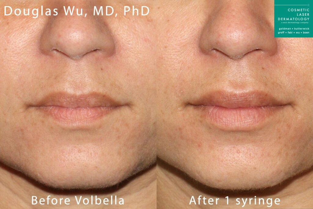 Volbella to augment the lips by Dr. Wu. Disclaimer: Results may vary from patient to patient. Results are not guaranteed.