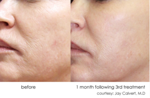 dermasweep wrinkle reduction la jolla, CA