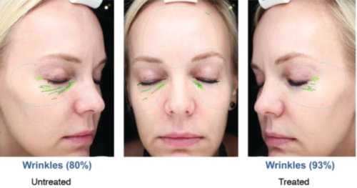 microdermabrasion undereye treatment in san diego, ca