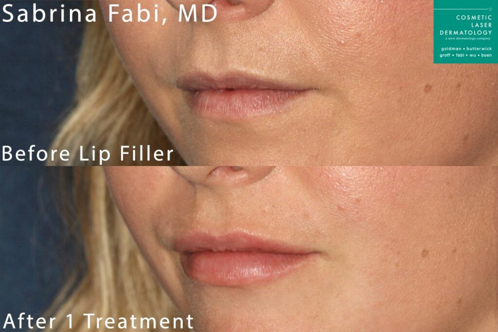 Lip filler to plump up the lips by Dr. Fabi. Disclaimer: Results may vary from patient to patient. Results are not guaranteed.