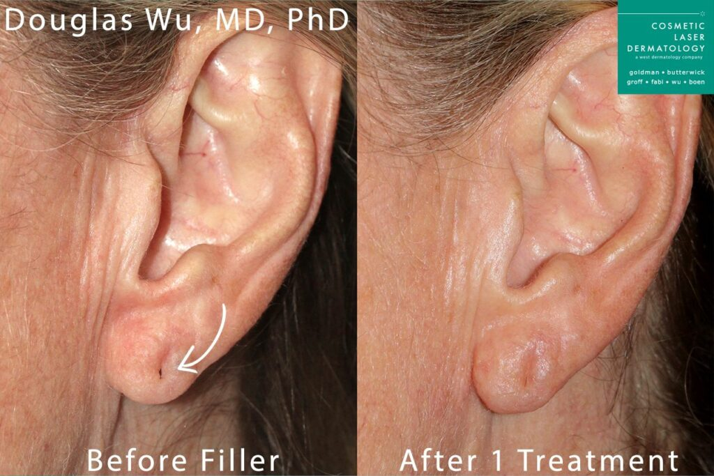 Dermal filler to plump up earlobes by Dr. Wu. Disclaimer: Results may vary from patient to patient. Results are not guaranteed.
