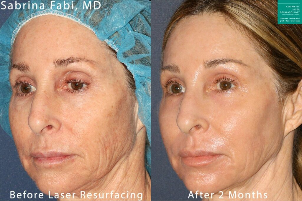 Laser resurfacing for skin rejuvenation by Dr. Fabi. Disclaimer: Results may vary from patient to patient. Results are not guaranteed.