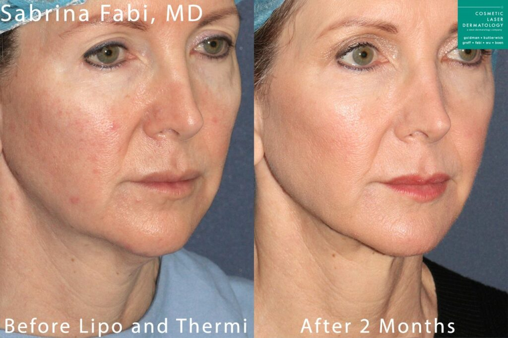 Liposuction and ThermiTight to treat submental fat and tighten the skin by Dr. Fabi. Disclaimer: Results may vary from patient to patient. Results are not guaranteed.