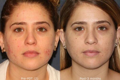 PDT to treat acne in san diego, CA