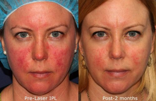IPL laser treatment results in San Diego
