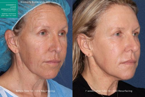 mouth wrinkles treatment results in San Diego