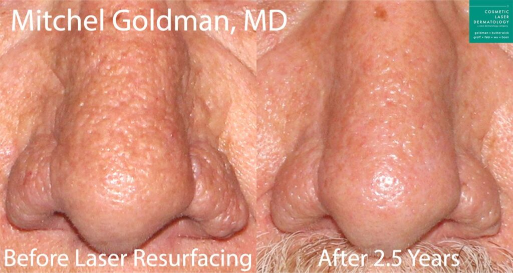 Laser resurfacing to treat rhinophyma by Dr. Goldman. Disclaimer: Results may vary from patient to patient. Results are not guaranteed.