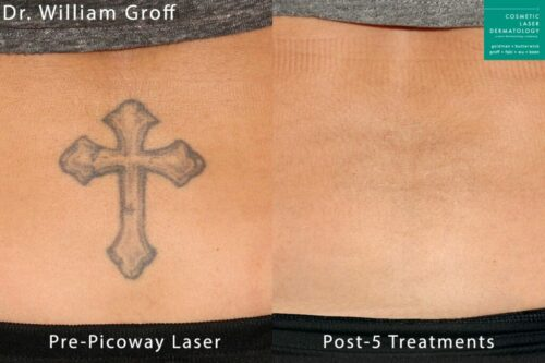PicoWay laser treatment to remove tattoo by Dr. Groff. After 5 sessions, tattoo is gone.