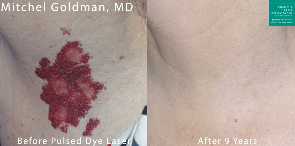 Pulse dye laser to treat port wine stain on neck by Dr. Goldman. Disclaimer: Results may vary from patient to patient. Results are not guaranteed.