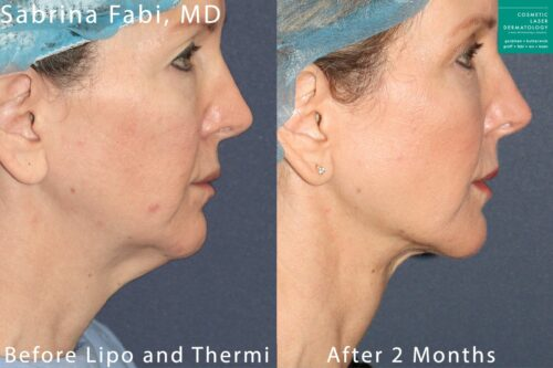 san diego liposuction and Thermi results