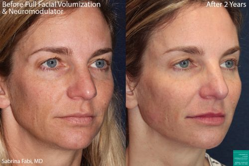 san diego consistent cosmetic treatments with neuromodulators