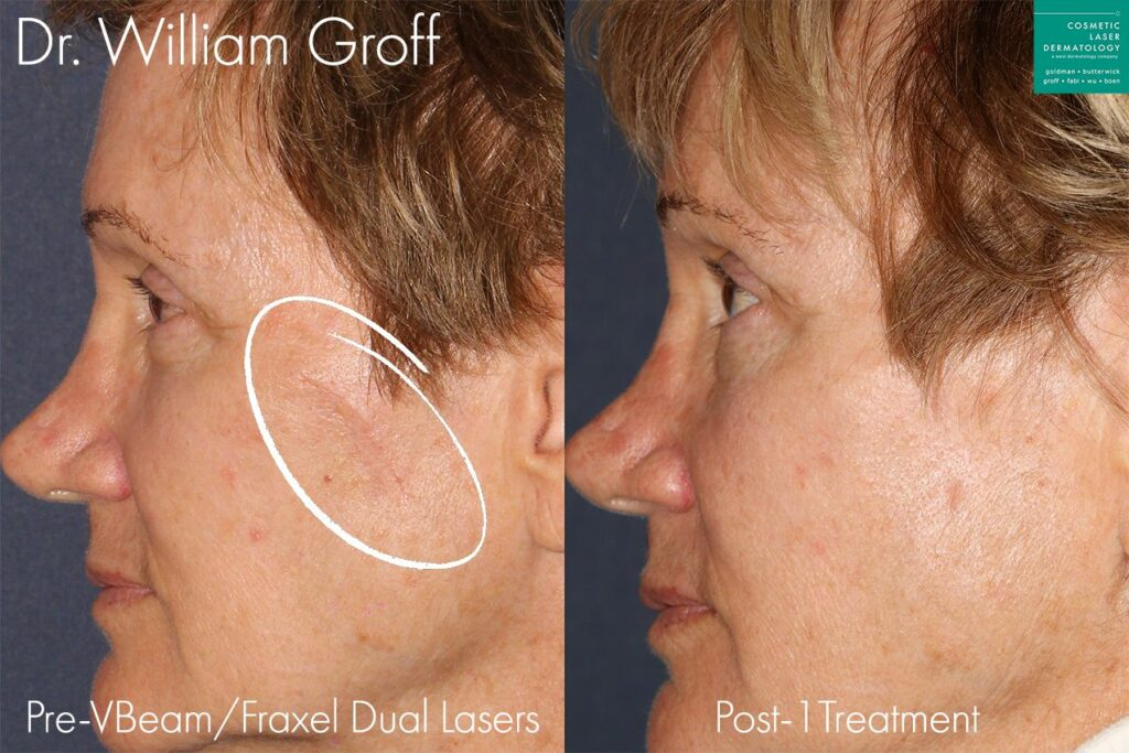Fraxel Dual laser to treat scar on cheek by Dr. Groff. Disclaimer: Results may vary from patient to patient. Results are not guaranteed.