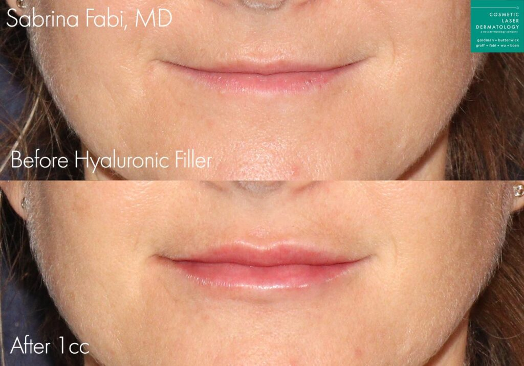 Hyaluronic acid filler to plump up the lips by Dr. Fabi. Disclaimer: Results may vary from patient to patient. Results are not guaranteed.