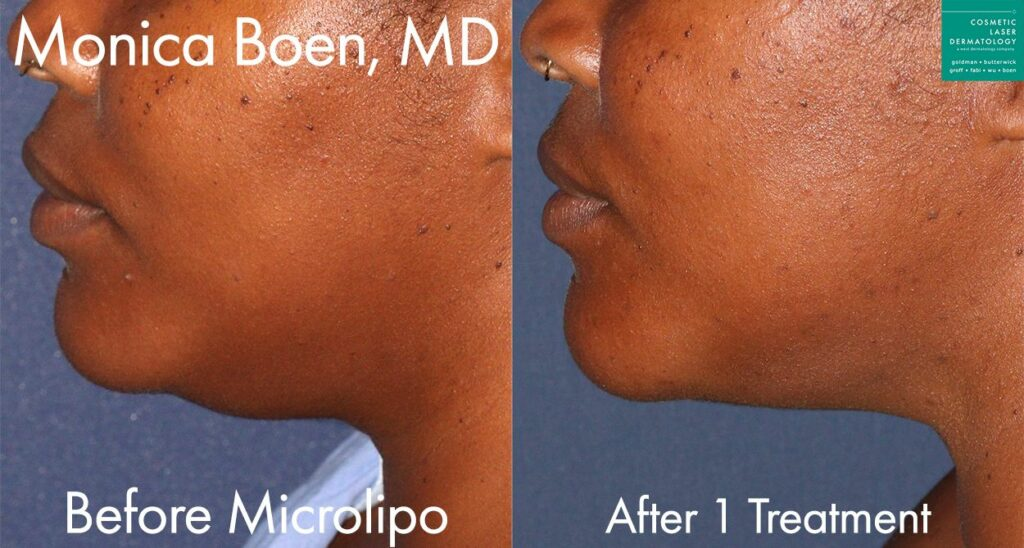 MicroLipo to remove extra fat from under the chin by Dr. Boen. Disclaimer: Results may vary from patient to patient. Results are not guaranteed.
