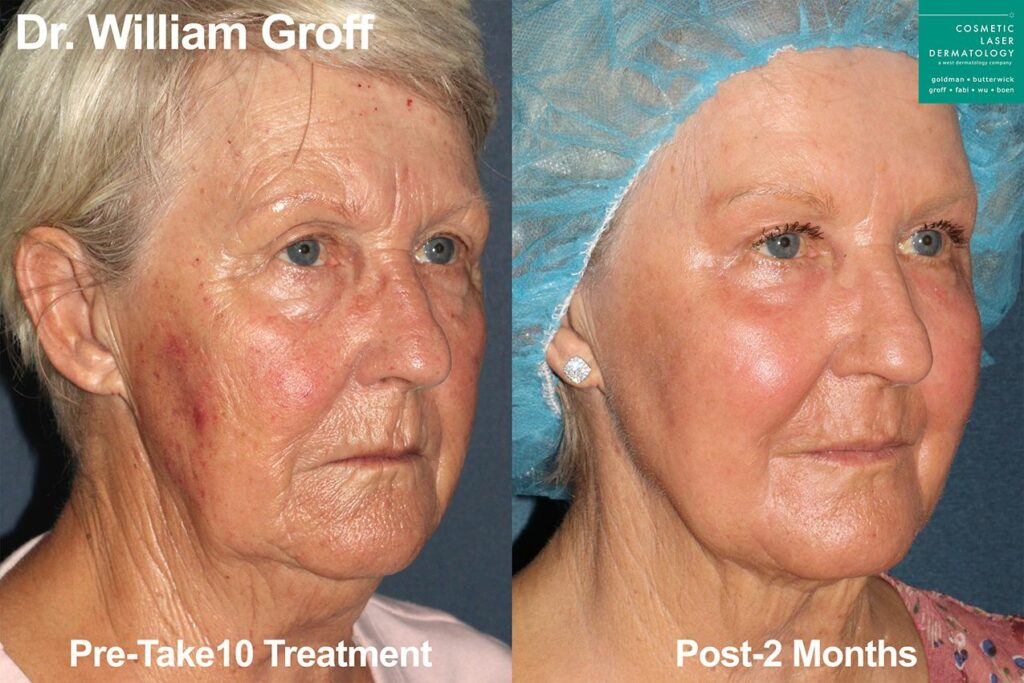Take 10 laser procedure to reverse aging signs on the face and neck by Dr. Groff. Disclaimer: Results may vary from patient to patient. Results are not guaranteed.