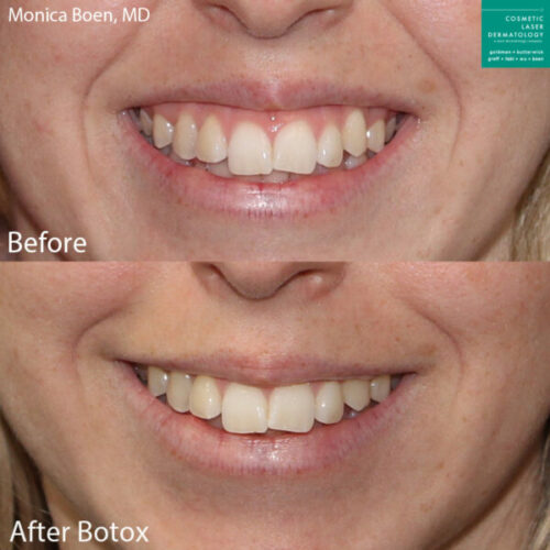 Botox results to treat a gummy smile in San Diego,CA