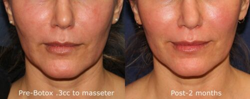 Botox injections to sculpt the jawline in San Diego, CA